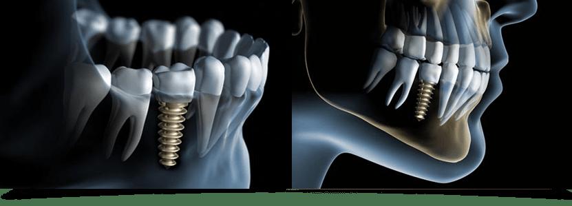 implantologie-zahnart